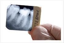 fogászati implantáció, fogbeültetls